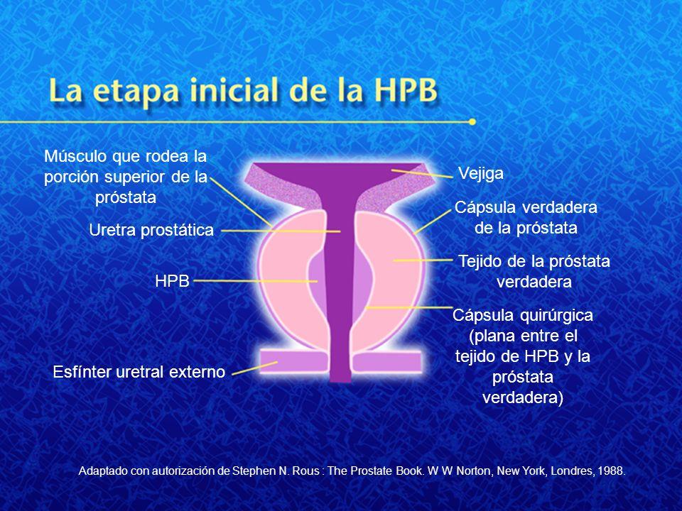 Músculo que rodea la porción superior de la próstata Vejiga