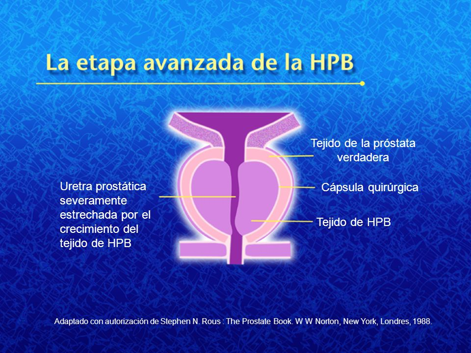 Tejido de la próstata verdadera