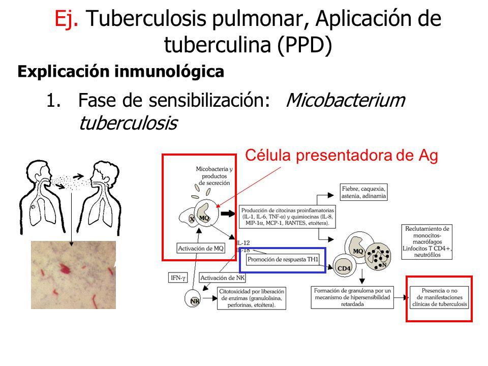 Ej. Tuberculosis pulmonar, Aplicación de tuberculina (PPD)