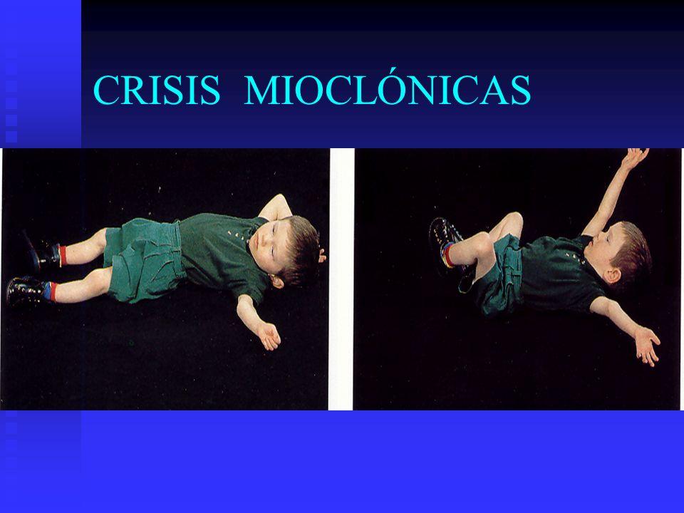 CRISIS MIOCLÓNICAS
