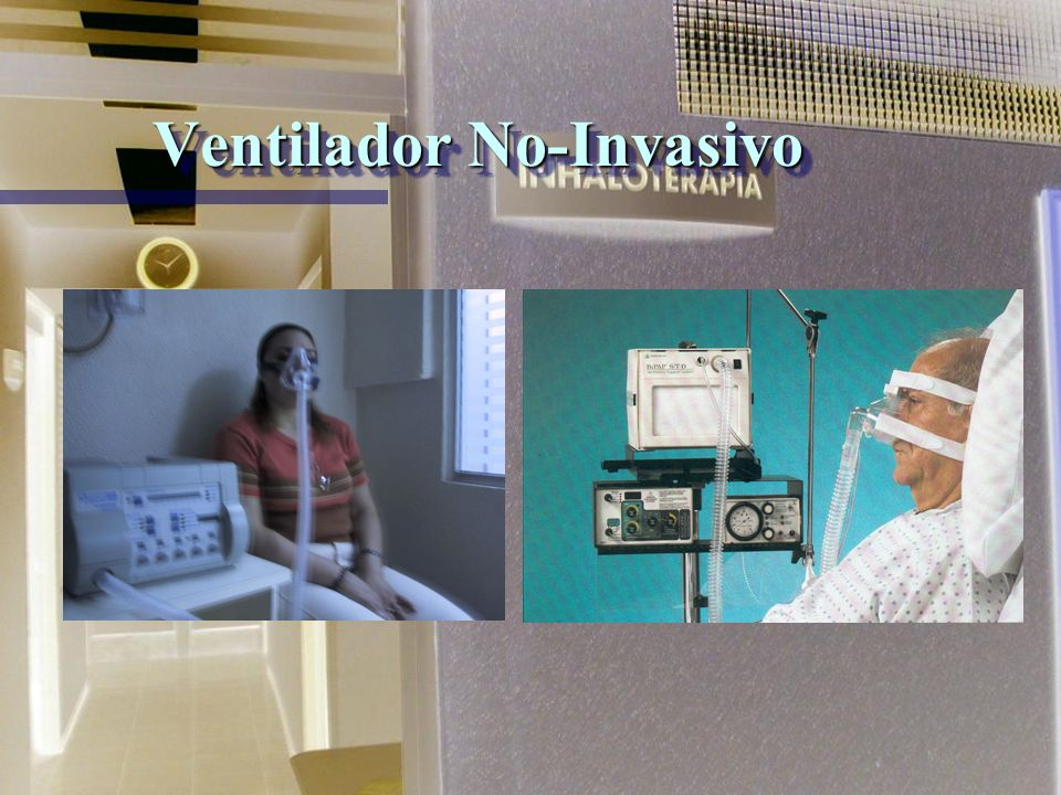 Ventilador No-Invasivo