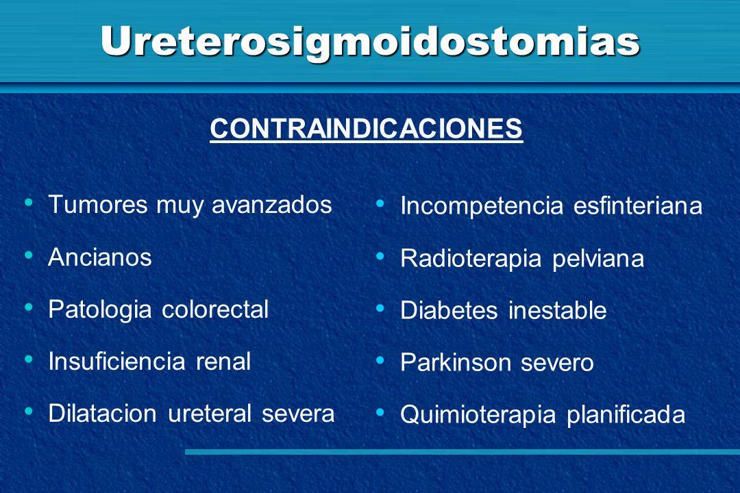 Ureterosigmoidostomias