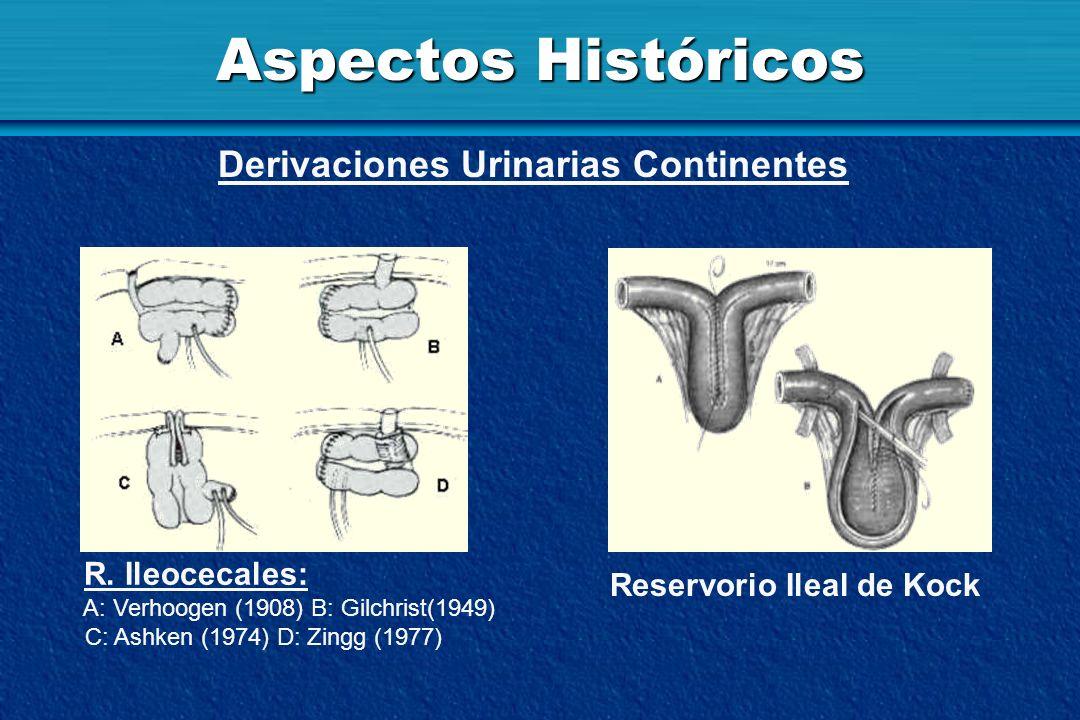 Aspectos Históricos Derivaciones Urinarias Continentes R. Ileocecales: