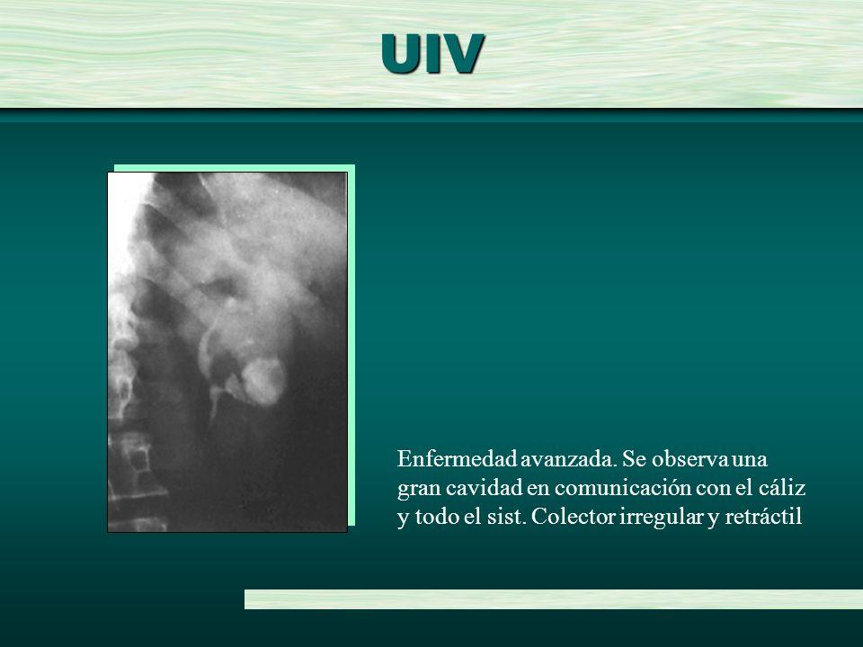 UIV Enfermedad avanzada. Se observa una gran cavidad en comunicación con el cáliz y todo el sist.