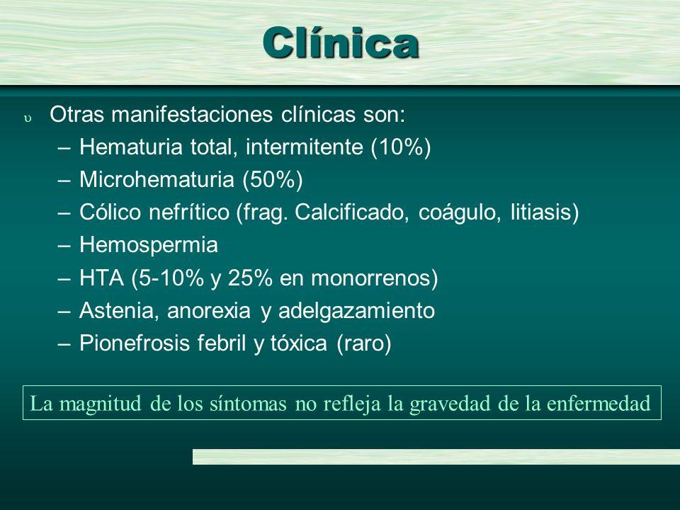 Clínica Otras manifestaciones clínicas son: