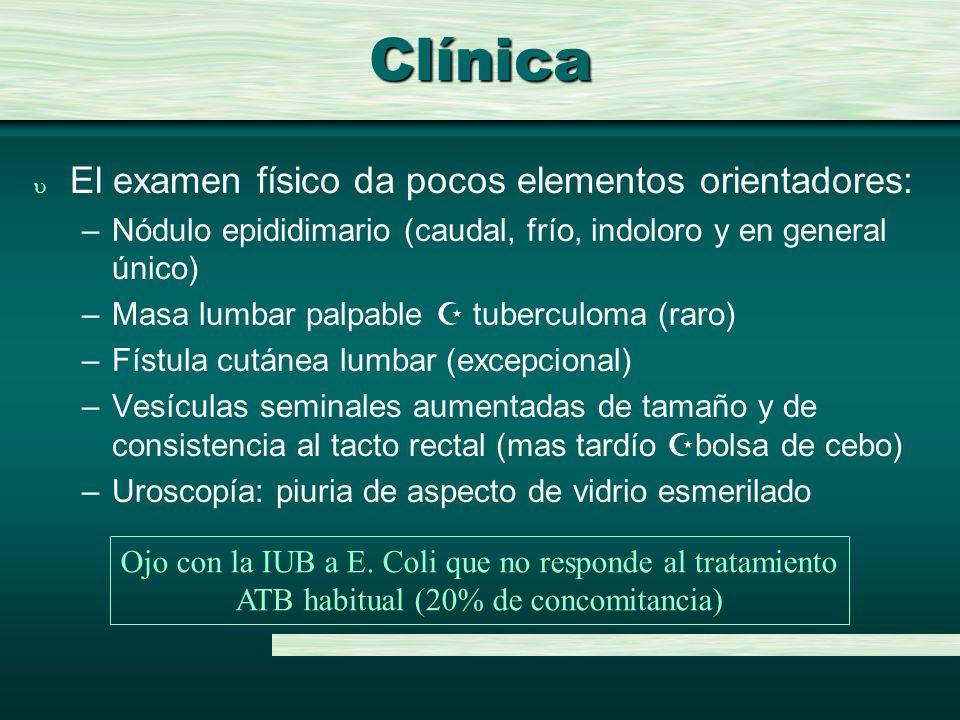 Clínica El examen físico da pocos elementos orientadores: