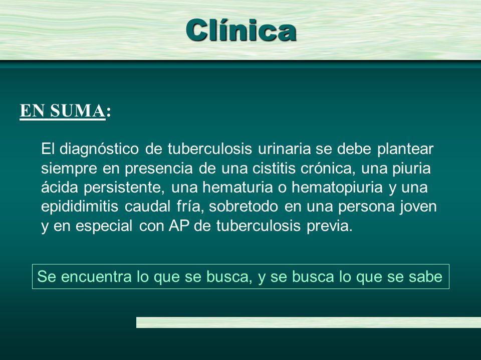 Clínica EN SUMA: El diagnóstico de tuberculosis urinaria se debe plantear. siempre en presencia de una cistitis crónica, una piuria.