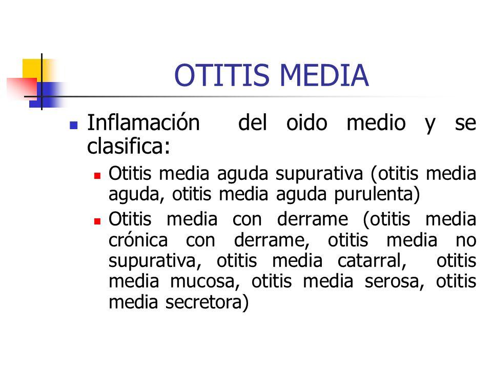 OTITIS MEDIA Inflamación del oido medio y se clasifica: