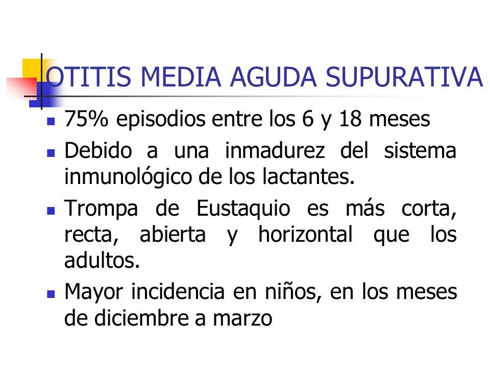OTITIS MEDIA AGUDA SUPURATIVA