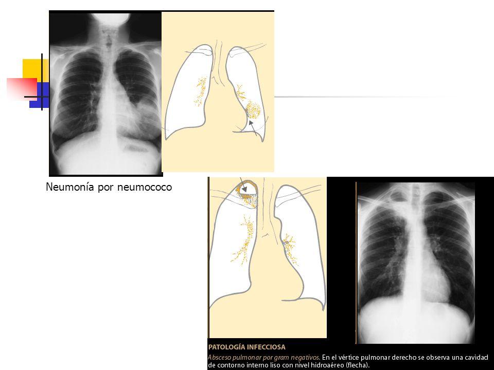Neumonía por neumococo