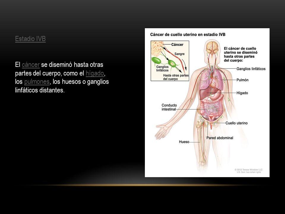 Estadio IVB El cáncer se diseminó hasta otras partes del cuerpo, como el hígado, los pulmones, los huesos o ganglios linfáticos distantes.