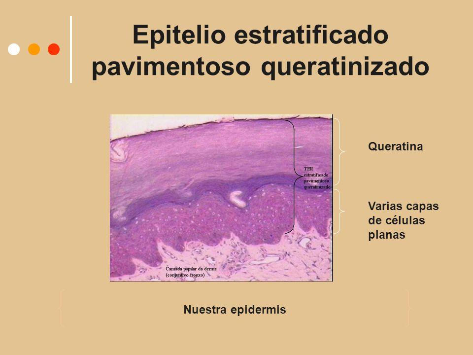 Epitelio estratificado pavimentoso queratinizado