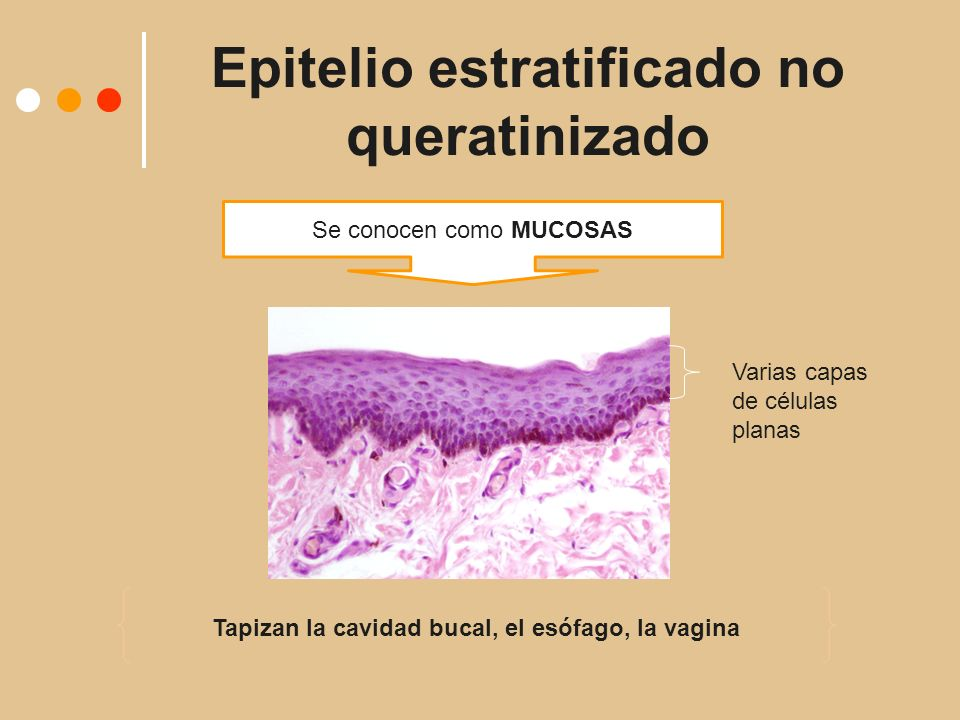 Epitelio estratificado no queratinizado
