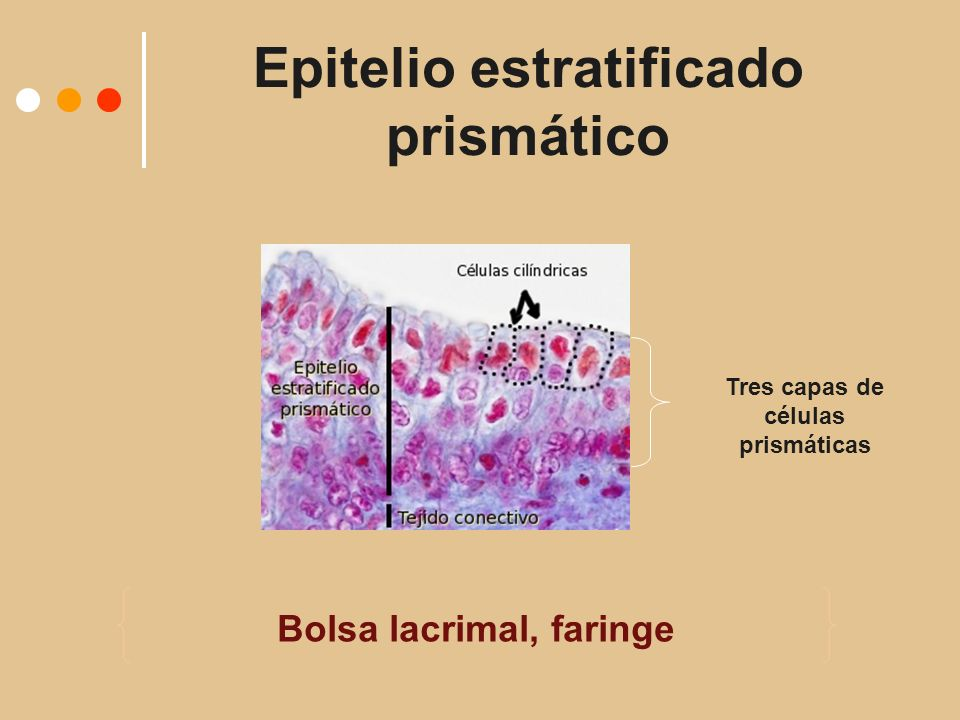 Epitelio estratificado prismático