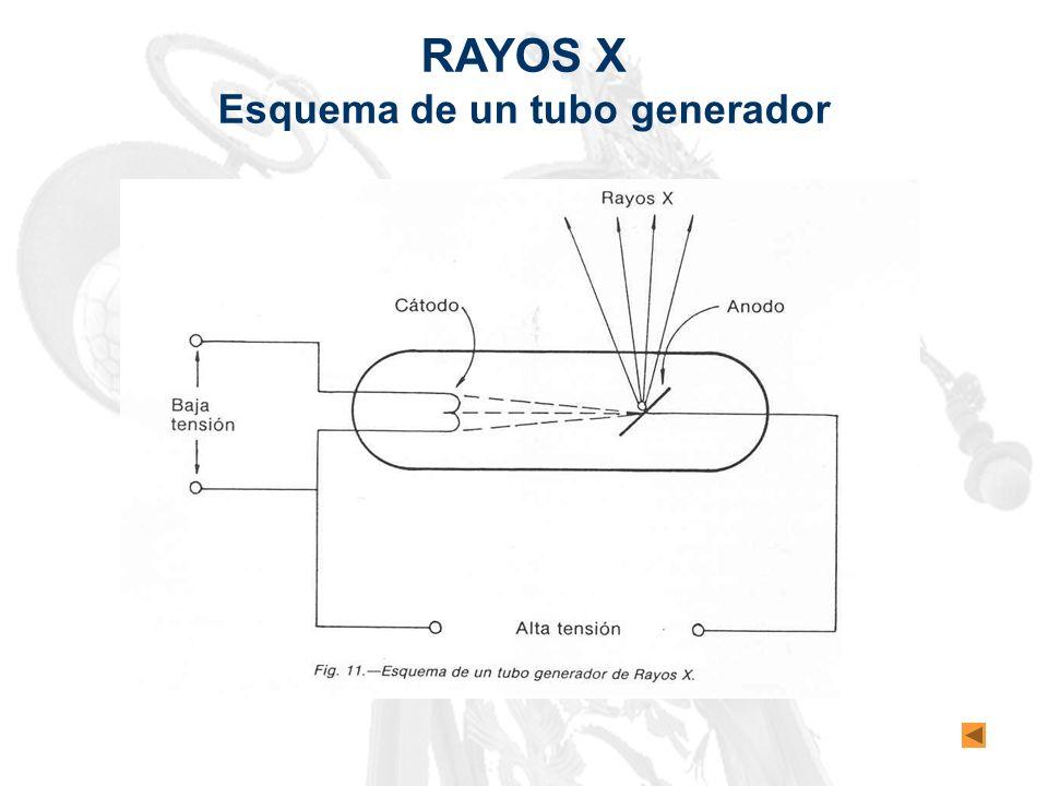 Esquema de un tubo generador