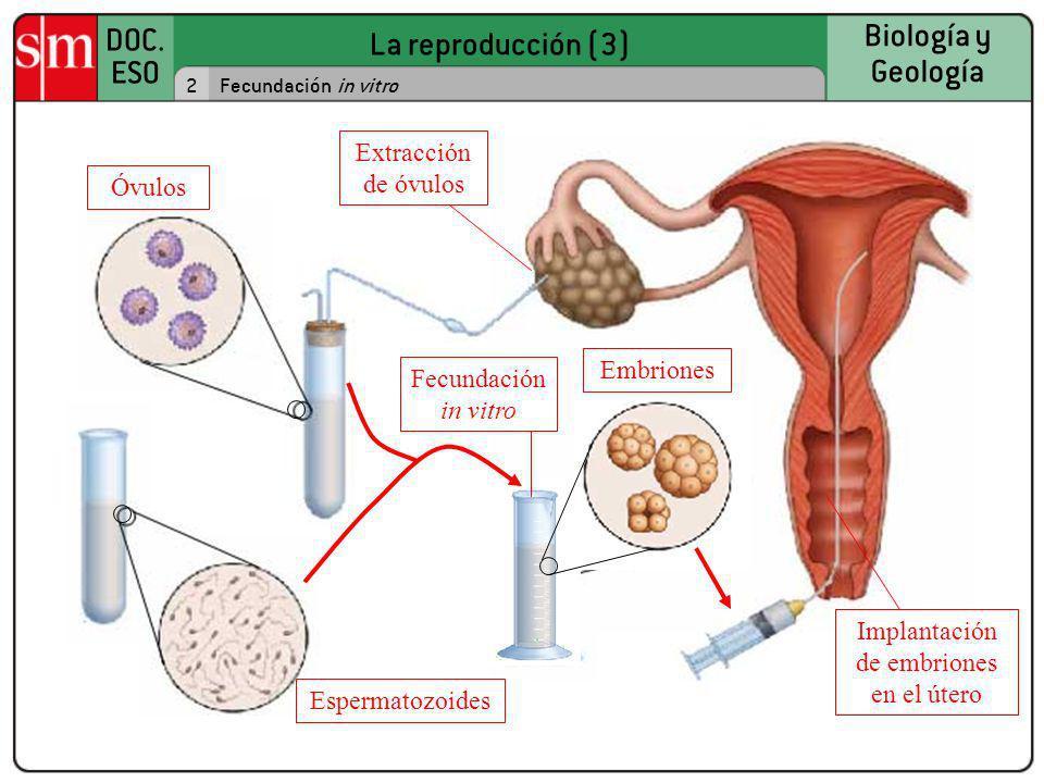 Implantación de embriones en el útero