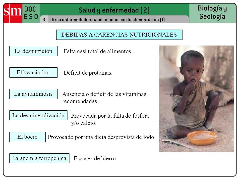 DEBIDAS A CARENCIAS NUTRICIONALES