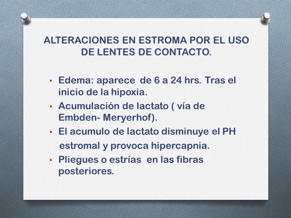 ALTERACIONES EN ESTROMA POR EL USO DE LENTES DE CONTACTO.