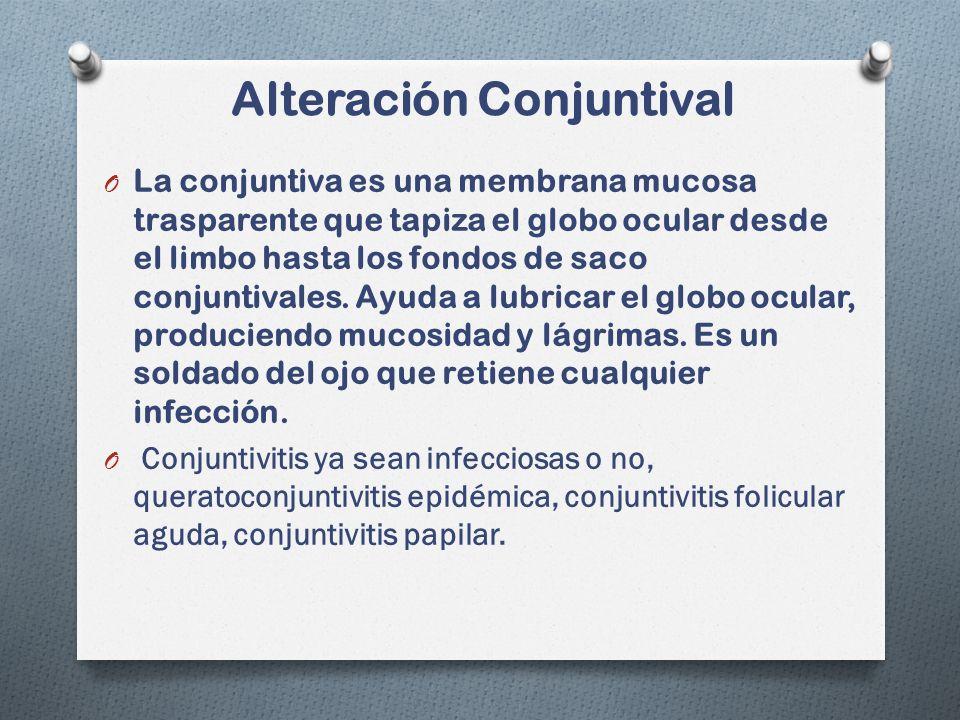 Alteración Conjuntival