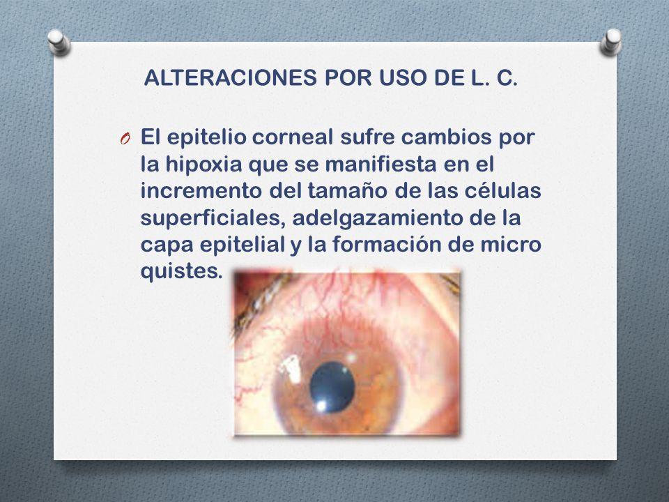 ALTERACIONES POR USO DE L. C.