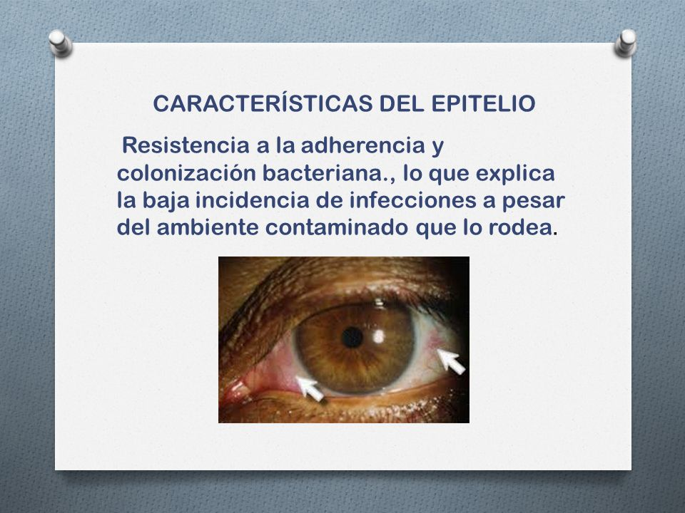 CARACTERÍSTICAS DEL EPITELIO