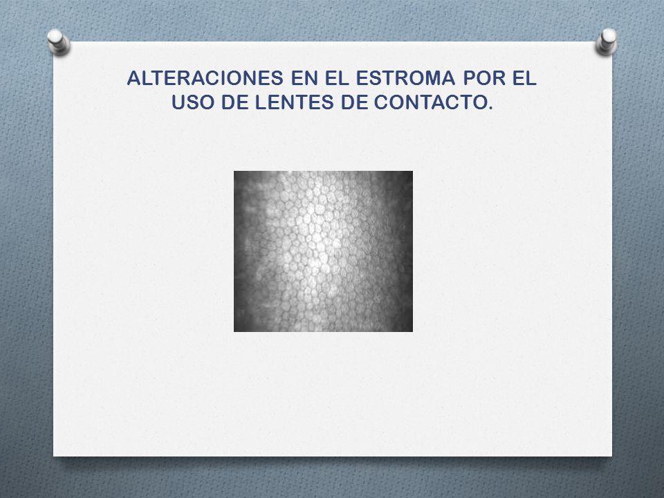 ALTERACIONES EN EL ESTROMA POR EL USO DE LENTES DE CONTACTO.