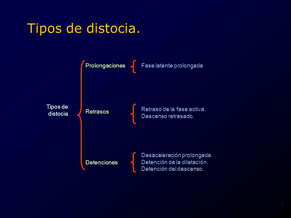 Tipos de distocia. Prolongaciones Fase latente prolongada Tipos de