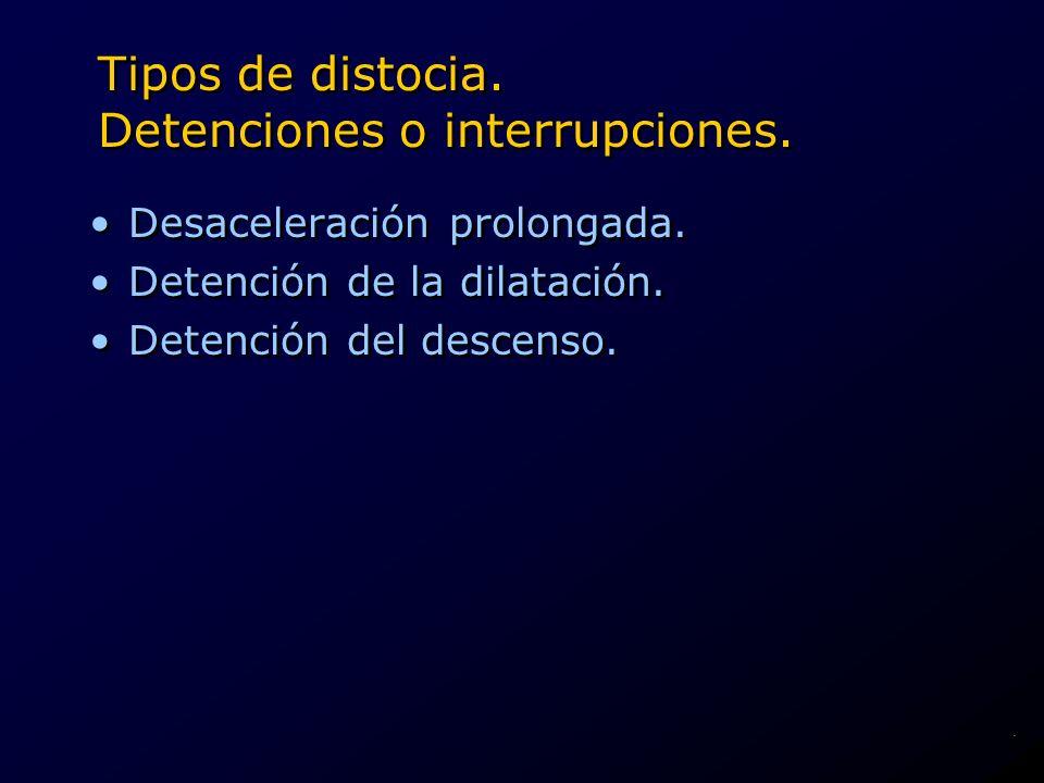 Tipos de distocia. Detenciones o interrupciones.