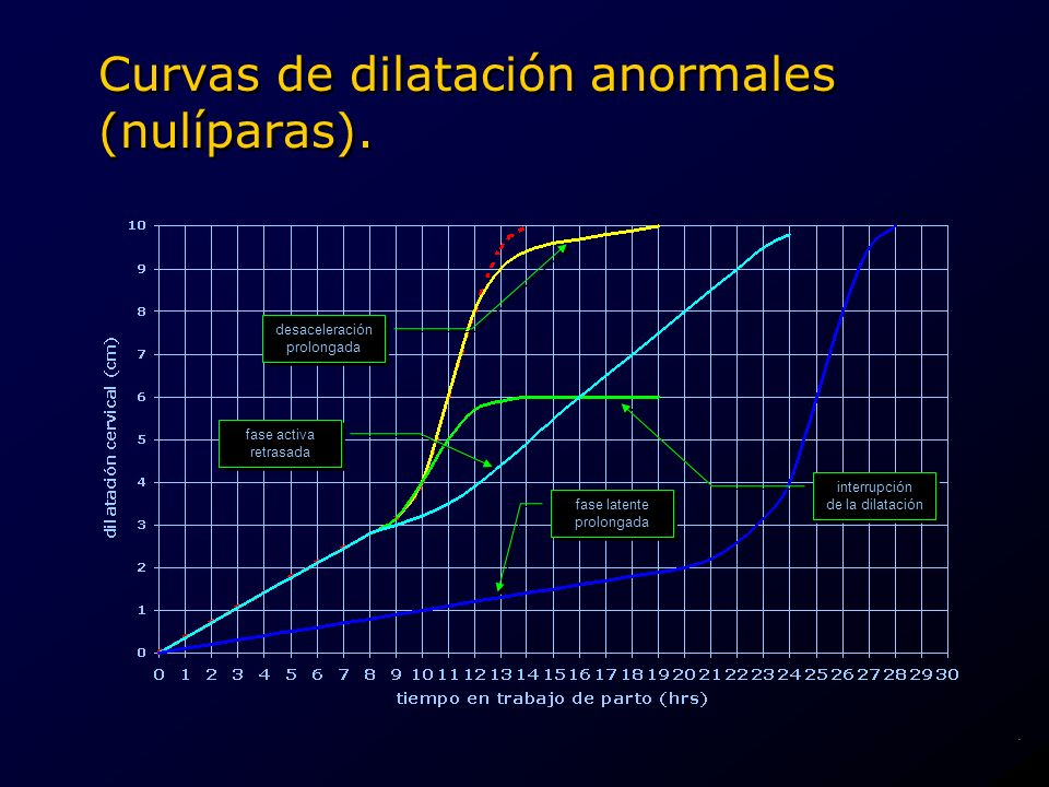 Curvas de dilatación anormales (nulíparas).
