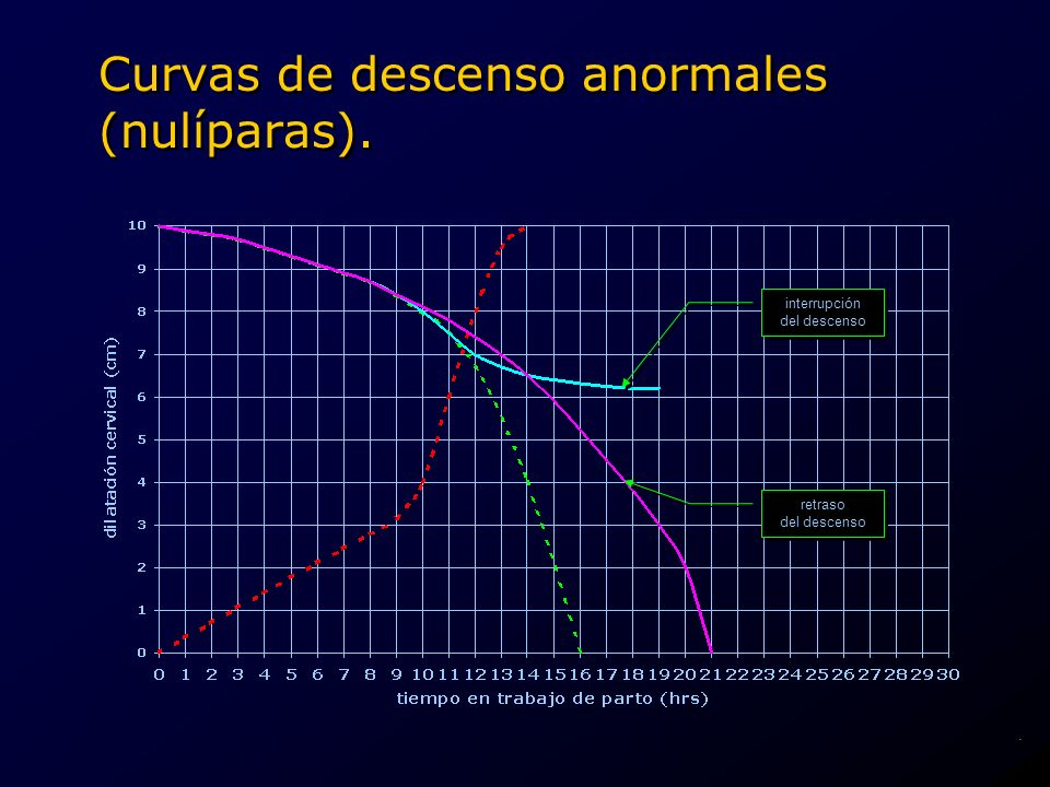 Curvas de descenso anormales (nulíparas).