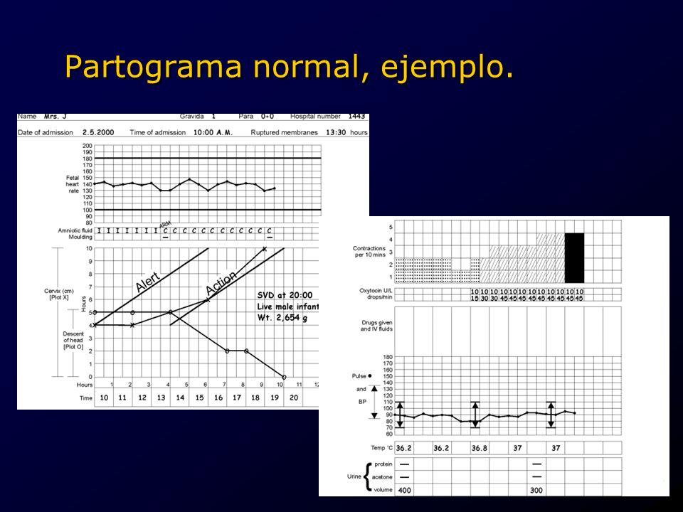 Partograma normal, ejemplo.