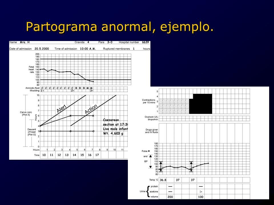 Partograma anormal, ejemplo.