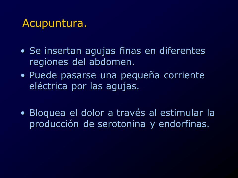 Acupuntura. Se insertan agujas finas en diferentes regiones del abdomen. Puede pasarse una pequeña corriente eléctrica por las agujas.
