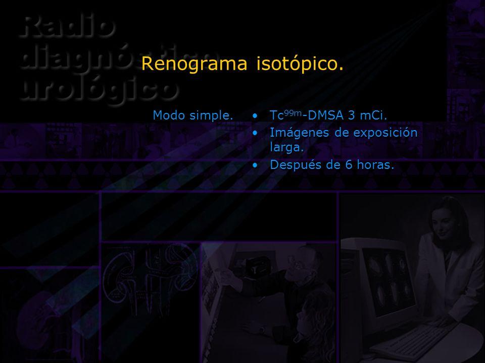 Renograma isotópico. Modo simple. Tc99m-DMSA 3 mCi.