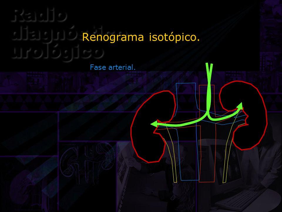 Renograma isotópico. Fase arterial.