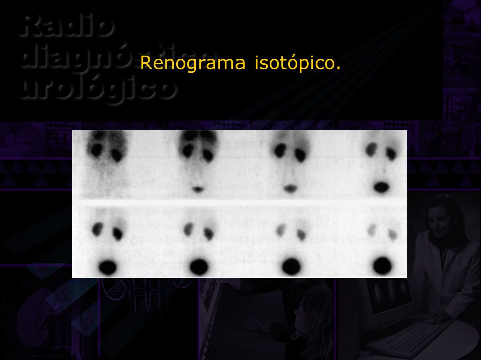 Renograma isotópico.