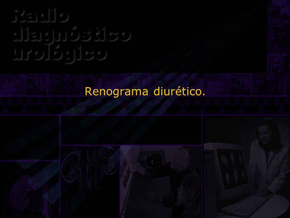 Renograma diurético. Otra prueba gamagráfica es el renograma diurético.
