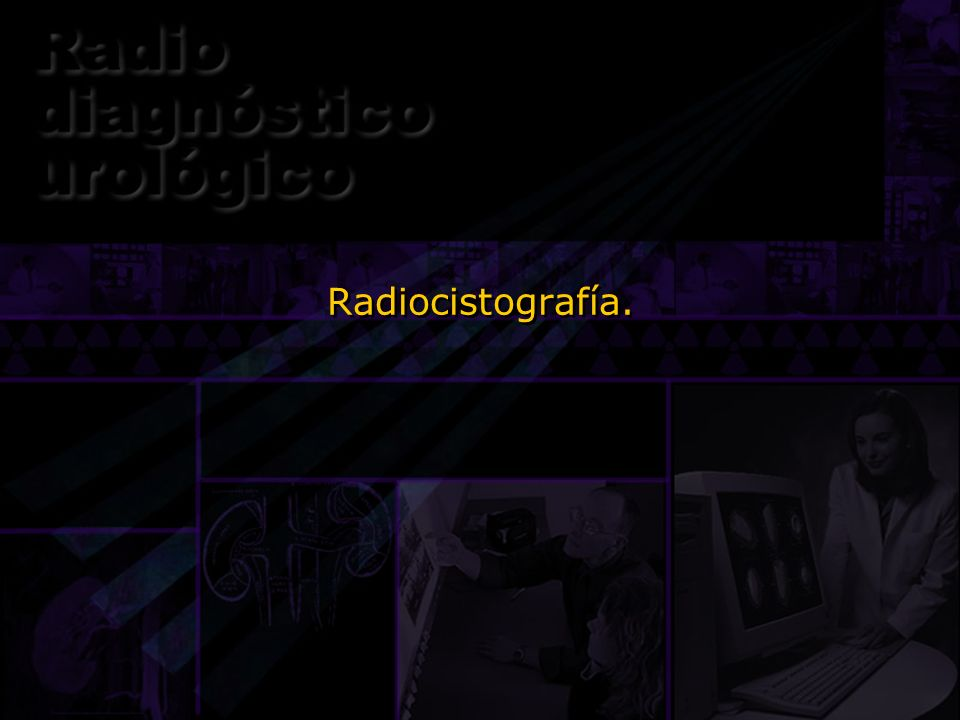 Radiocistografía.Otro estudio gamagráfico es la radiocistografía, que básicamente es como la cistografía normal pero usando radionúclidos.