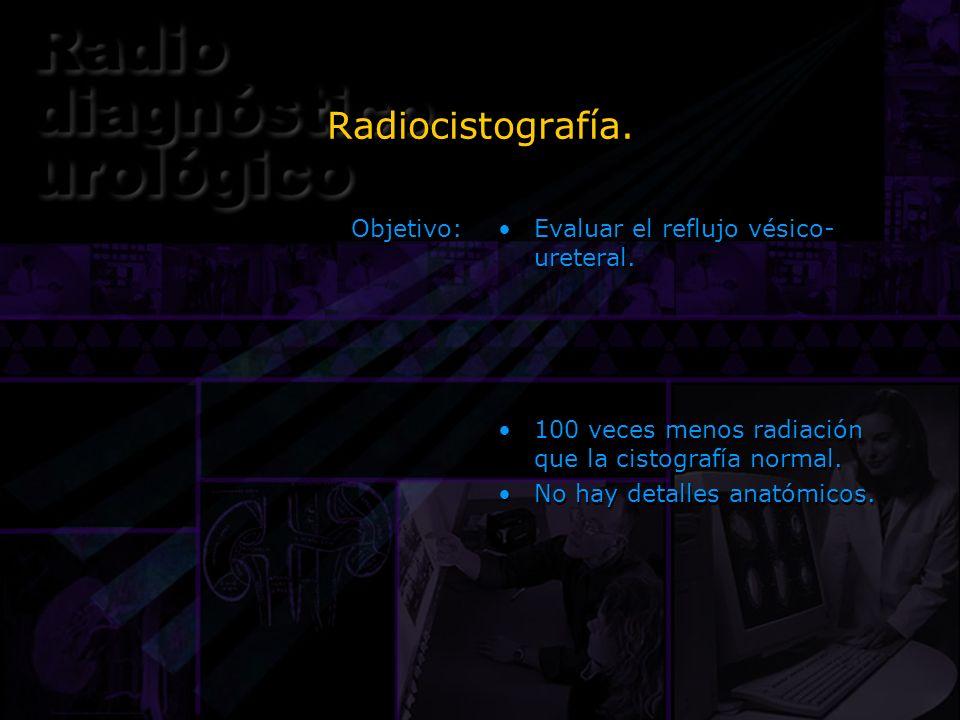 Radiocistografía. Objetivo: Evaluar el reflujo vésico-ureteral.