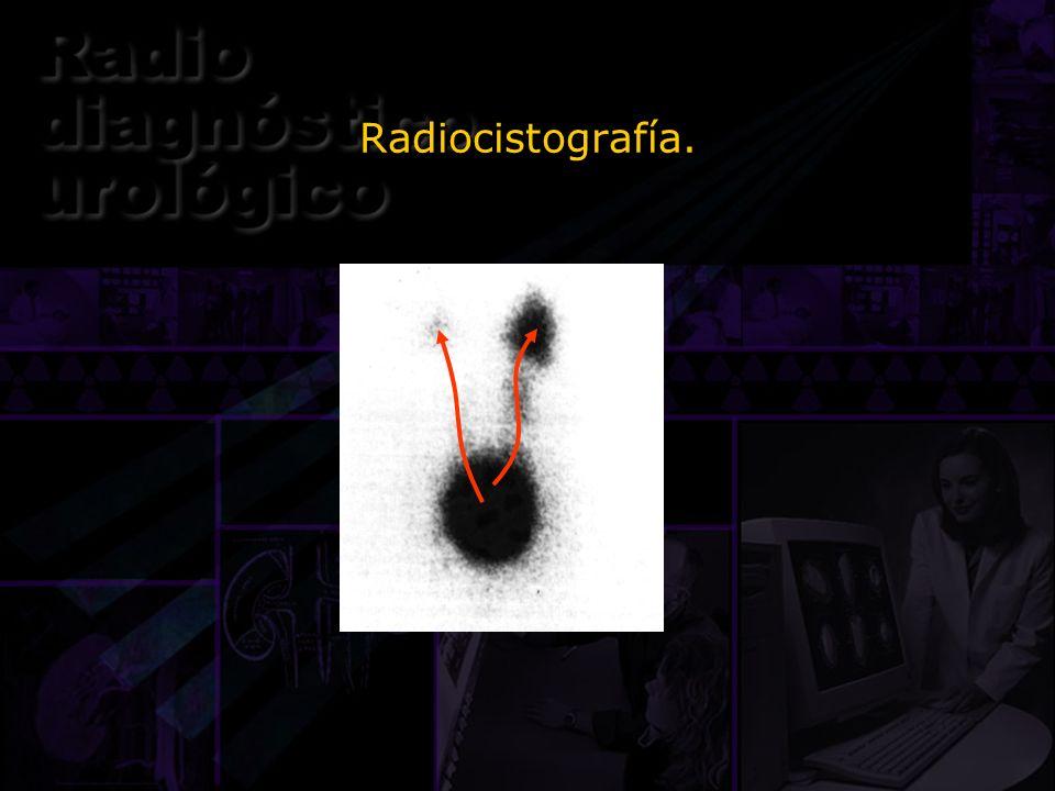 Radiocistografía.Este es una radiocistograma de una niña de 2 años, donde se demuestra el reflujo fácilmente.