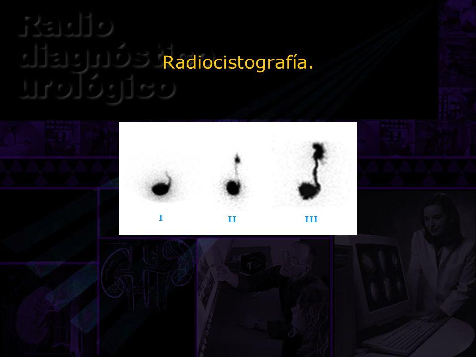Radiocistografía. I II III