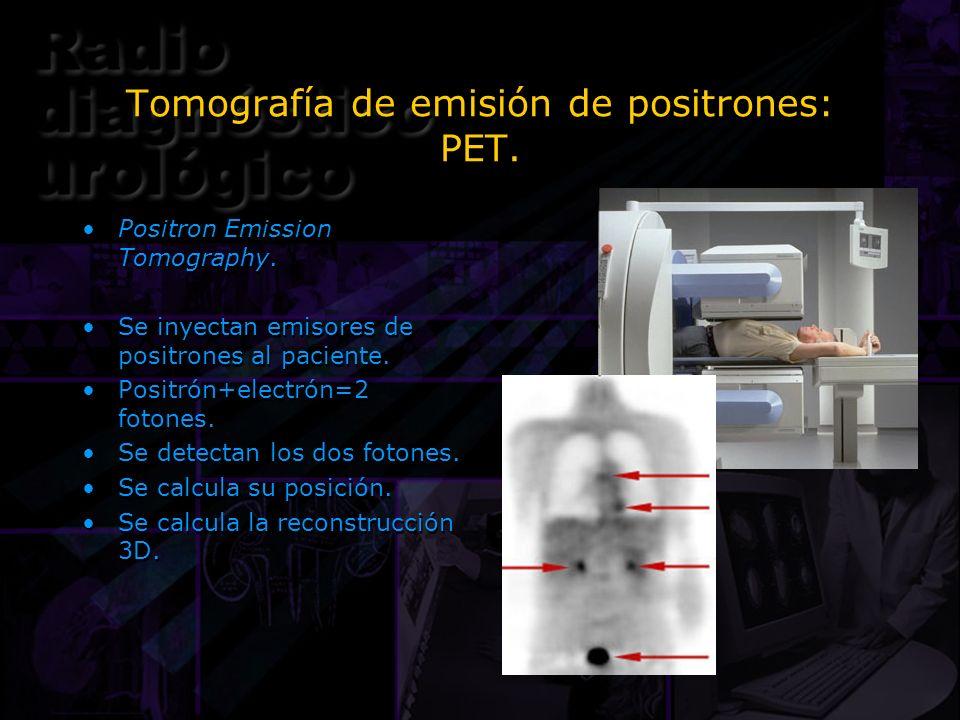 Tomografía de emisión de positrones: PET.