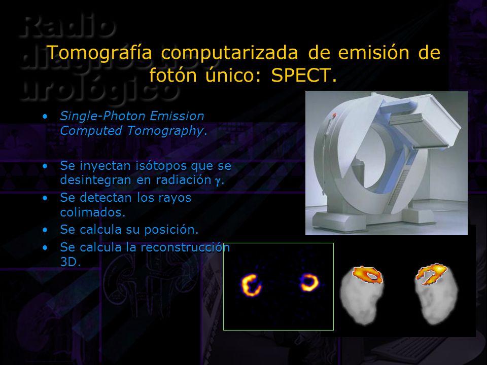 Tomografía computarizada de emisión de fotón único: SPECT.