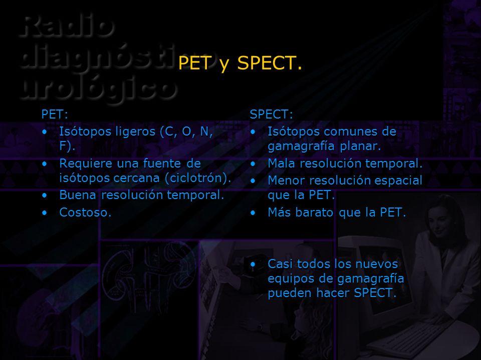 PET y SPECT. PET: Isótopos ligeros (C, O, N, F).