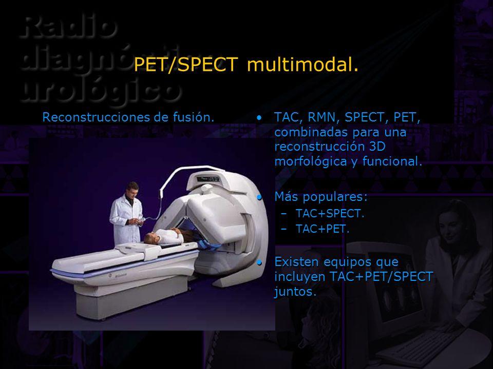PET/SPECT multimodal. Reconstrucciones de fusión.