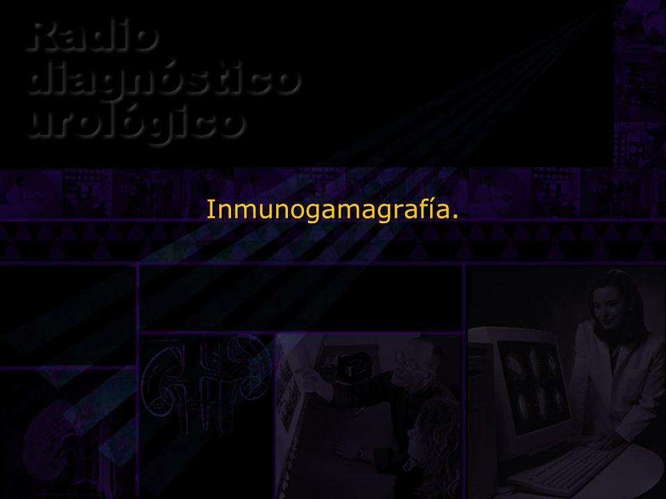 Inmunogamagrafía.Una forma de gamagrafía que probablemente va a tener un gran desarrollo en los próximos años es la inmunogamagrafía.