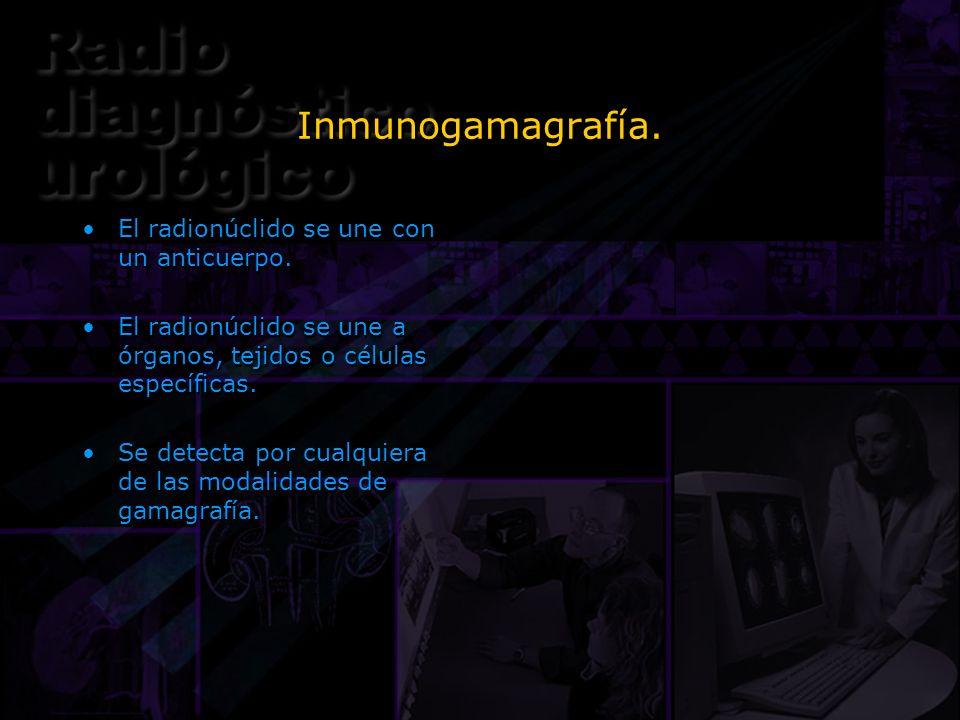 Inmunogamagrafía. El radionúclido se une con un anticuerpo.