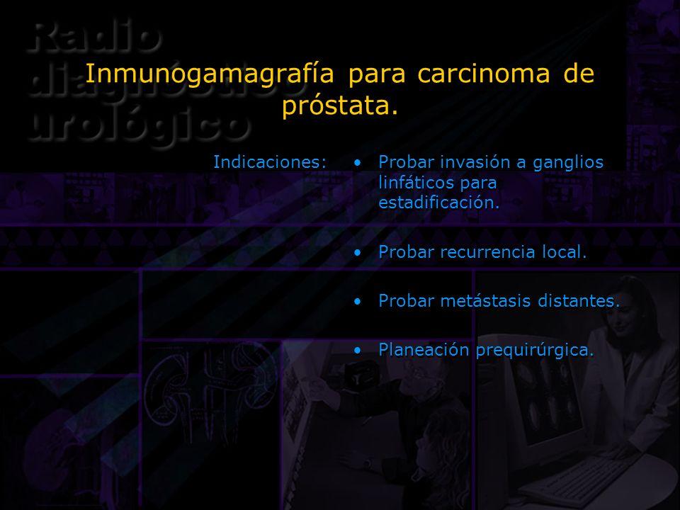 Inmunogamagrafía para carcinoma de próstata.