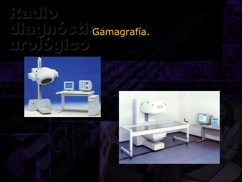 Gamagrafía. Estas dos imágenes son de detectores gamma planares.
