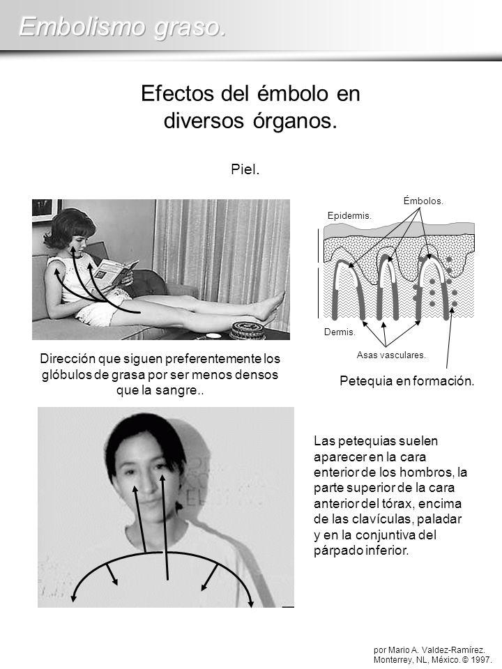 Efectos del émbolo en diversos órganos.